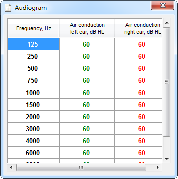 CAM2B v4: Audiogram (table with data)